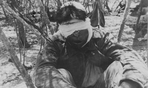 guerra del chaco soldado boliviano herido en la cara.