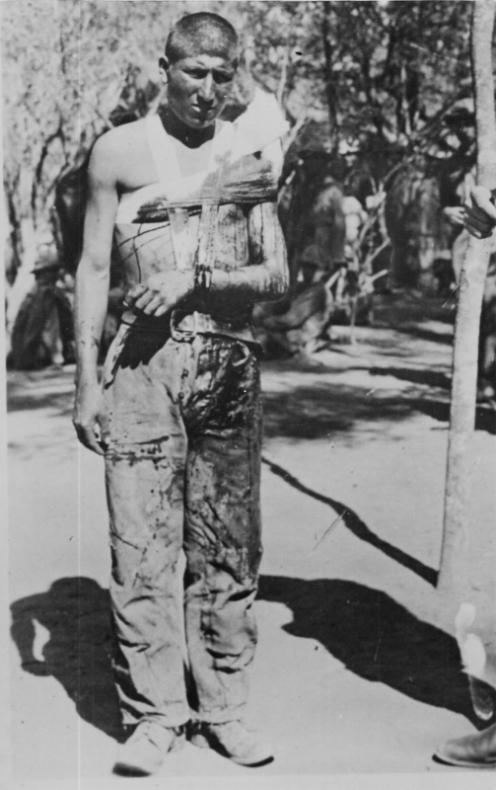 soldado boliviano herido