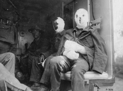 gas venenoso quemadura -primera guerra mundial