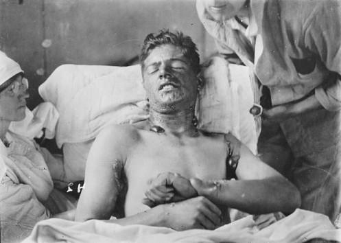 Soldado quemado con gas mostaza
